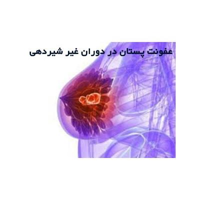 عفونت پستان در دوران غیر شیردهی