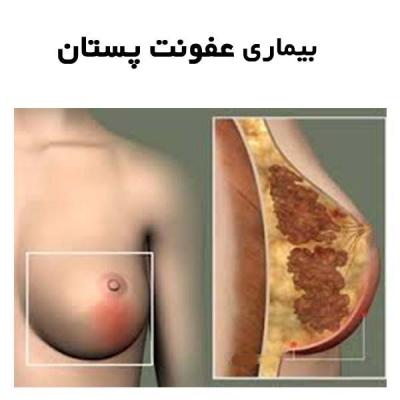 بیماری عفونت پستان