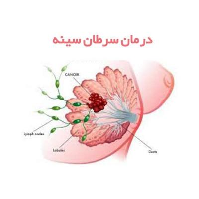 درمان سرطان سینه در یزد