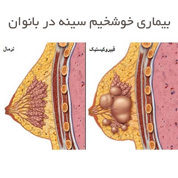 بیماری خوشخیم سینه در بانوان