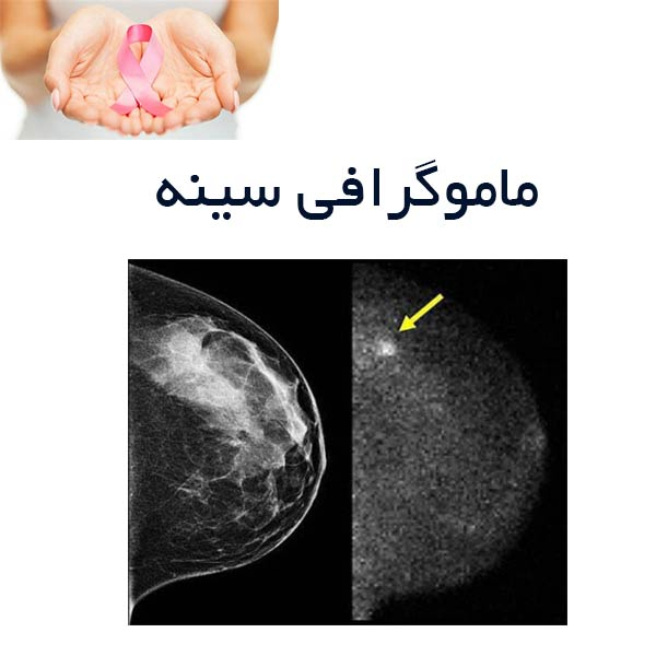 ماموگرافی سینه