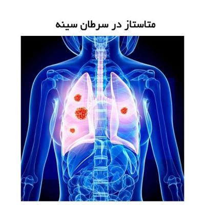 متاستاز در سرطان سینه