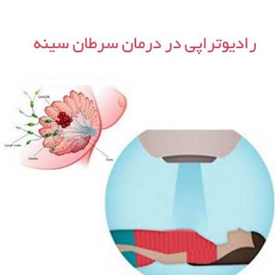 رادیوتراپی در درمان سرطان سینه